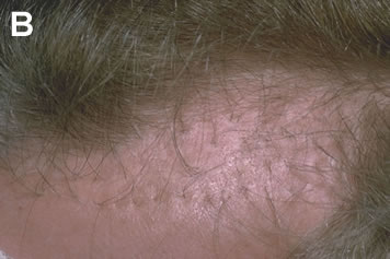 Art of Repair in Surgical Hair Restoration Pt I - 53-year-old male with hair plugs that were transplanted years ago