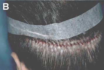 Art of Repair in Surgical Hair Restoration Pt II - Grafts harvested from an area of extensive scarring using the single-strip method