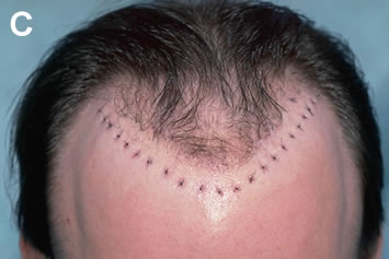 Art of Repair in Surgical Hair Restoration Pt II - Sutured sites after the removal (note the hair re-transplanted to the front edge of the old hairline)
