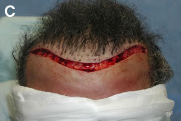 Art of Repair in Surgical Hair Restoration Pt II - Forty plugs removed in a single linear excision extending across entire hairline