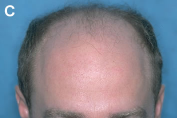 Art of Repair in Surgical Hair Restoration Pt II - Frontal view before repair