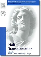 Procedures in Cosmetic Dermatology: Hair Transplantation - Elsevier Saunders