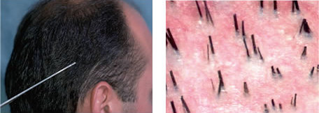 Miniaturization of Hair Shafts in Androgenetic Alopecia
