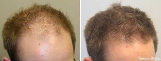 Patient OVQ - 34 y/o male before treatment (left); after 5 years on finasteride 1.25mg/day and Rogaine (minoxidil) solution 5% PM (right)
