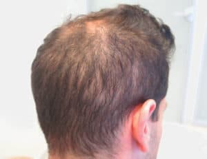 27 Year Old Male with Diffuse Unpatterned Alopecia (DUPA)